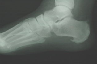 Inferior Calcaneal Spur
