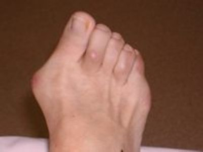 What treatment is available for foot bunions?