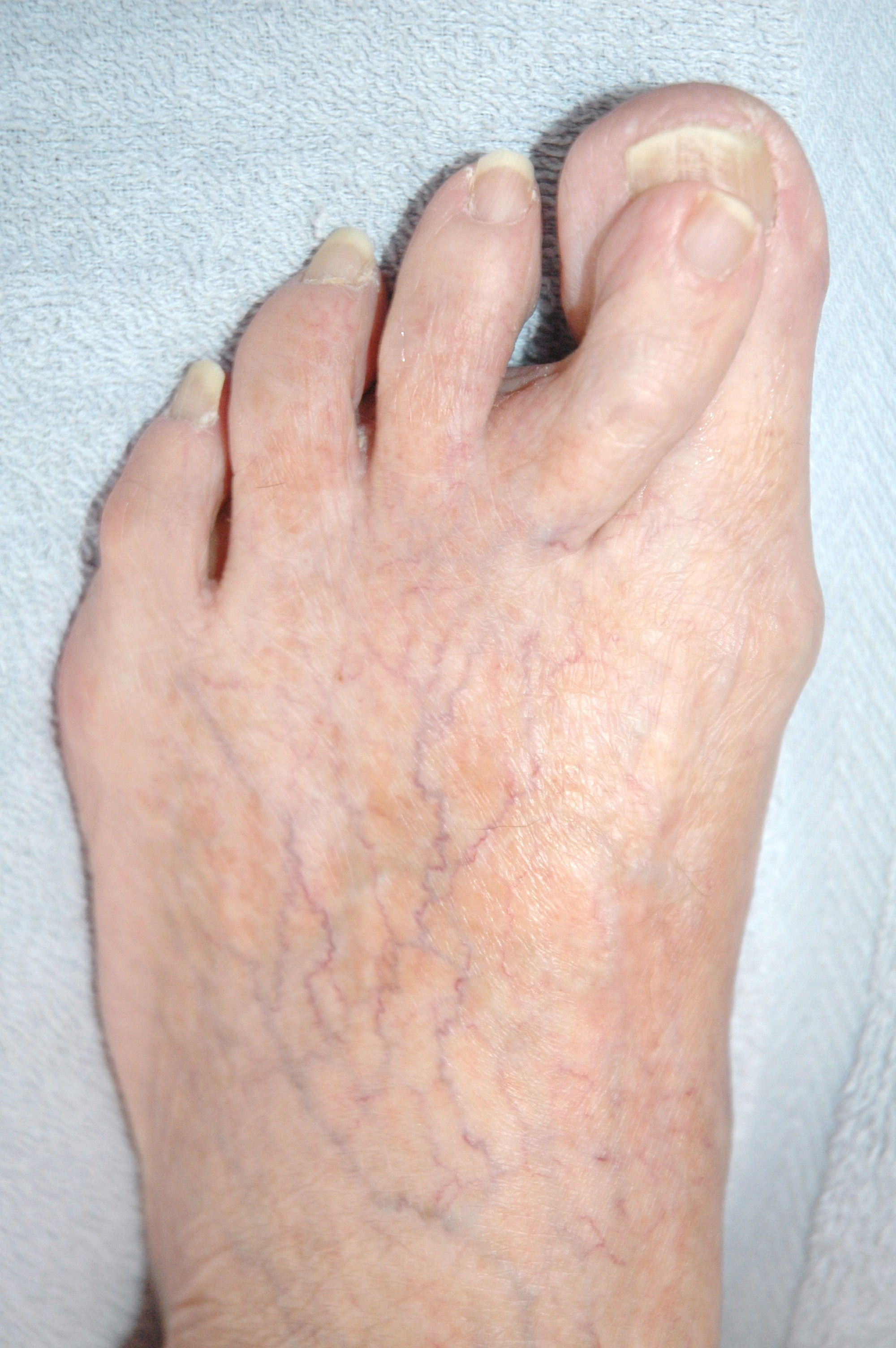 Mortons toe what is it what causes it how to treat it bunion solutioingenieria Images