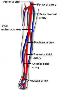 Foot Care: Arteries of the lower leg effected by PAD in diabetes, Complements of Dr. Burton S. Schuler, podiatrist, foot care  specialist, of Panama City, Panama City Beach Fl  32413