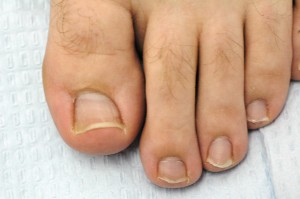 Morton's Toe, credit Dr. Burton S. Schuler, Panama City, Fl