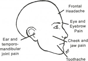Trigger Points of head caused by Morton's Toe