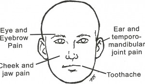 Trigger Points of the head
