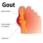 gout-podiatrist-dr-schuler-panama-city-fl